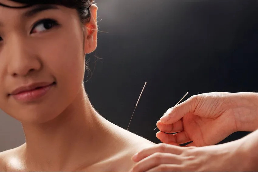 What are the benefits of acupuncture